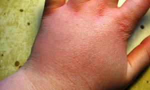 Lampropelma nigerrimum – raport ukąszenia